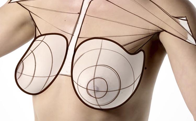 explantacion mamaria